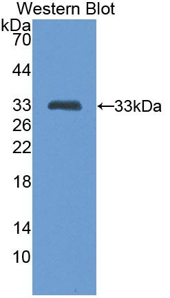 Polyclonal Antibody to Tumor Necrosis Factor Related Apoptosis Inducing Ligand (TRAIL)