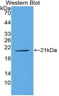 Polyclonal Antibody to Plasminogen Activator, Urokinase (uPA)
