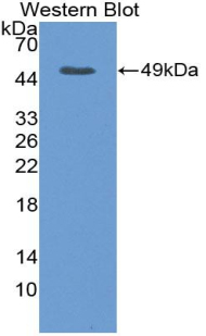 Polyclonal Antibody to Vascular Endothelial Growth Factor A (VEGFA)