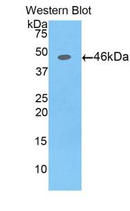 Polyclonal Antibody to Alpha-Fetoprotein (aFP)