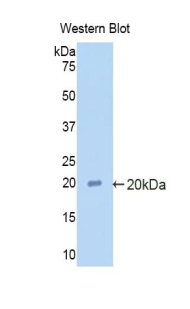 Polyclonal Antibody to Alpha 2-Antiplasmin (a2PI)