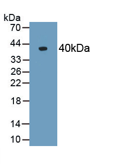 Polyclonal Antibody to Alpha-2-Heremans Schmid Glycoprotein (AHSG)