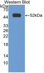 Polyclonal Antibody to Interferon Alpha 2 (IFNa2)