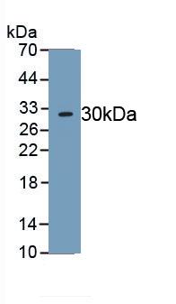 Polyclonal Antibody to Neutrophil Elastase (NE)