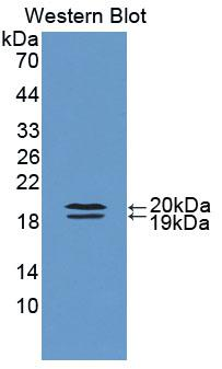 Polyclonal Antibody to Fatty Acid Binding Protein 9, Testis (FABP9)