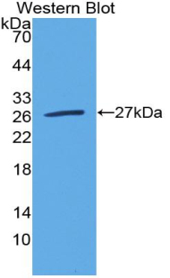 Polyclonal Antibody to Triggering Receptor Expressed On Myeloid Cells 1 (TREM1)