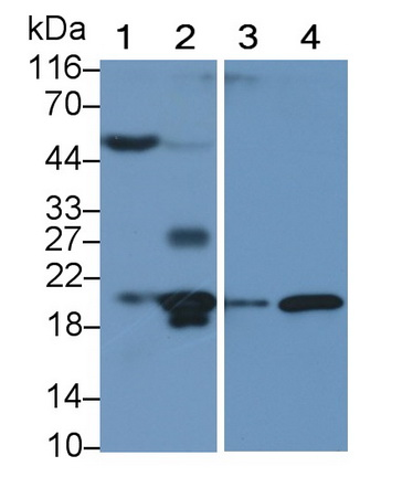 Polyclonal Antibody to Interleukin 1 Receptor Antagonist (IL1RA)