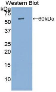 Polyclonal Antibody to Cathepsin K (CTSK)