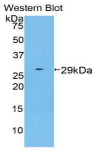 Polyclonal Antibody to Transportin 1 (TNPO1)