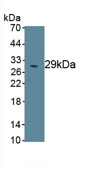 Polyclonal Antibody to Poly ADP Ribose Polymerase (PARP)