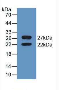 Polyclonal Antibody to Calnexin (CNX)
