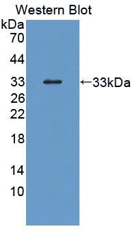Polyclonal Antibody to Heparin Cofactor II (HCII)