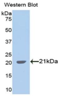 Polyclonal Antibody to Alpha-Fodrin (SPTAN1)