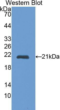Polyclonal Antibody to Cathepsin L (CTSL)