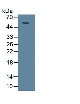 Polyclonal Antibody to Galectin 9 (GAL9)