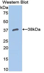 Polyclonal Antibody to Apolipoprotein H (APOH)