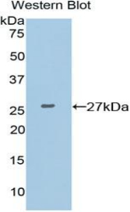 Polyclonal Antibody to X-Ray Repair Cross Complementing 6 (XRCC6)