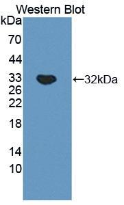 Polyclonal Antibody to Cathepsin A (CTSA)
