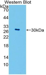 Polyclonal Antibody to GATA Binding Protein 4 (GATA4)
