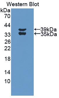 Polyclonal Antibody to Complement Component 3a (C3a)