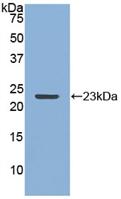 Polyclonal Antibody to Matrix Metalloproteinase 12 (MMP12)