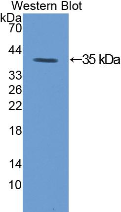 Polyclonal Antibody to Protein Kinase C Gamma (PKCg)