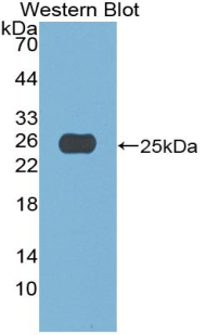 Polyclonal Antibody to Apobec 1 Complementation Factor (ACF)
