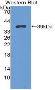 Polyclonal Antibody to Trophoblast Glycoprotein (TPBG)