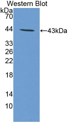 Polyclonal Antibody to Parathyroid Hormone Receptor 2 (PTHR2)