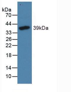 Polyclonal Antibody to N-Terminal Pro-Brain Natriuretic Peptide (NT-ProBNP)
