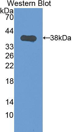 Polyclonal Antibody to Keratin 1 (KRT1)
