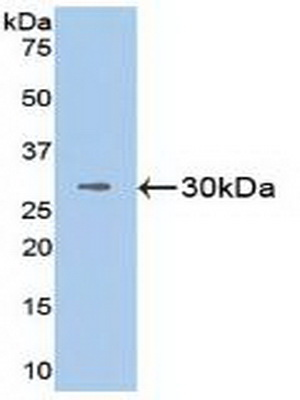 Polyclonal Antibody to Vascular Cell Adhesion Molecule 1 (VCAM1)