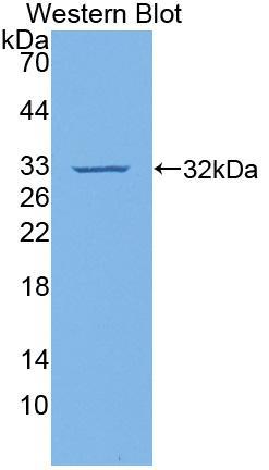 Polyclonal Antibody to Vascular Cell Adhesion Molecule 1 (VCAM1)