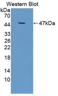 Polyclonal Antibody to Tissue Inhibitors Of Metalloproteinase 1 (TIMP1)