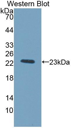 Polyclonal Antibody to Tissue Inhibitors Of Metalloproteinase 1 (TIMP1)