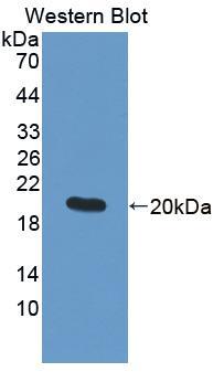 Polyclonal Antibody to Matrix Metalloproteinase 9 (MMP9)