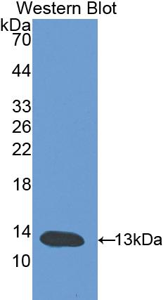 Polyclonal Antibody to Leukemia Inhibitory Factor Receptor (LIFR)