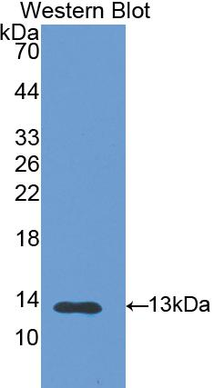 Polyclonal Antibody to S100 Calcium Binding Protein A11 (S100A11)