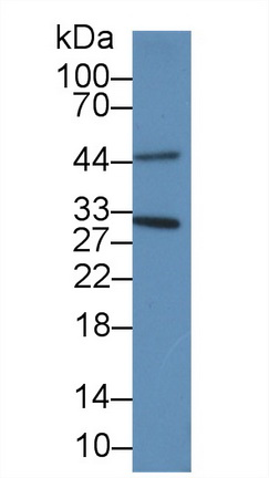 Polyclonal Antibody to Proliferating Cell Nuclear Antigen (PCNA)