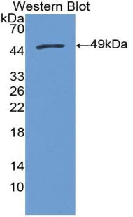 Polyclonal Antibody to Microsomal Glutathione S Transferase 1 (MGST1)