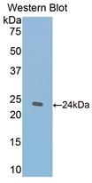 Polyclonal Antibody to Thrombospondin 1 (THBS1)