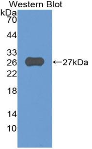 Polyclonal Antibody to A Disintegrin And Metalloprotease 8 (ADAM8)