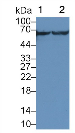 Polyclonal Antibody to Calcium/Calmodulin Dependent Protein Kinase II Gamma (CAMK2g)