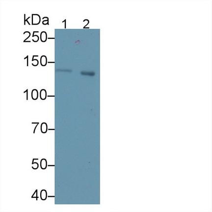 Polyclonal Antibody to Cross Linked C-Telopeptide Of Type I Collagen (CTXI)