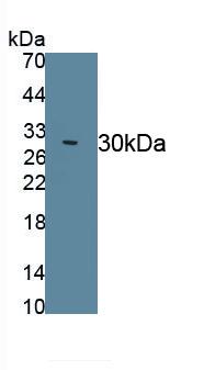 Polyclonal Antibody to Dopamine Receptor D2 (DRD2)