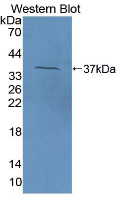 Polyclonal Antibody to Coagulation Factor V (F5)