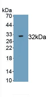 Polyclonal Antibody to Coagulation Factor XII (F12)