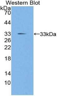 Polyclonal Antibody to TGF Beta Inducible Early Response Gene 1 (TIEG1)