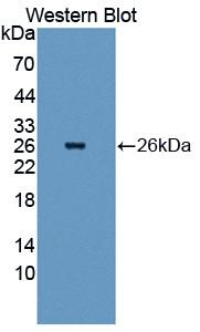 Polyclonal Antibody to Heat Shock Protein 27 (Hsp27)