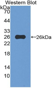 Polyclonal Antibody to Von Willebrand Factor A Domain Containing Protein 3A (vWA3A)